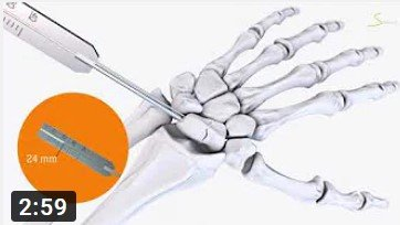 Treatment of scaphoid